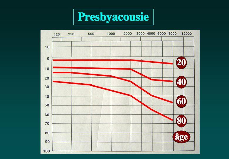 Schéma: presbyacousie