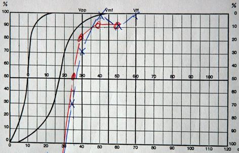 L Audiometrie Otologie Dr Albert Mudry
