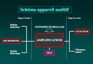 Schéma: Structure d'un appareil auditif